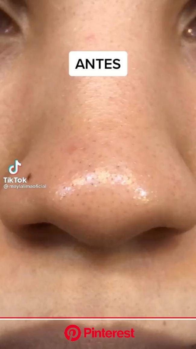 Si les funciona ❤️ [Vídeo] em 2021 | Dicas de maquilhagem, Dicas de cuidados com o rosto, Produtos para acne
